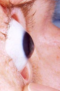 345px-Keratoconus_eye